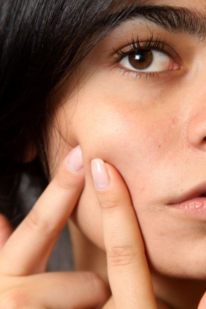 productos anti acné
