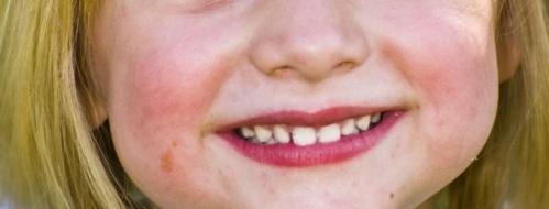 El cepillo dental eléctrico para niños de PHB