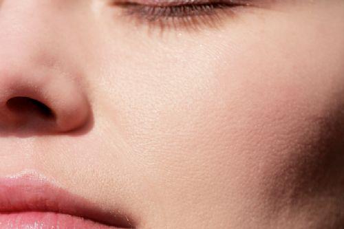 Piel grasa o acneica